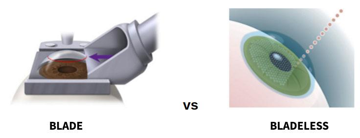 blade-vs-bladeless