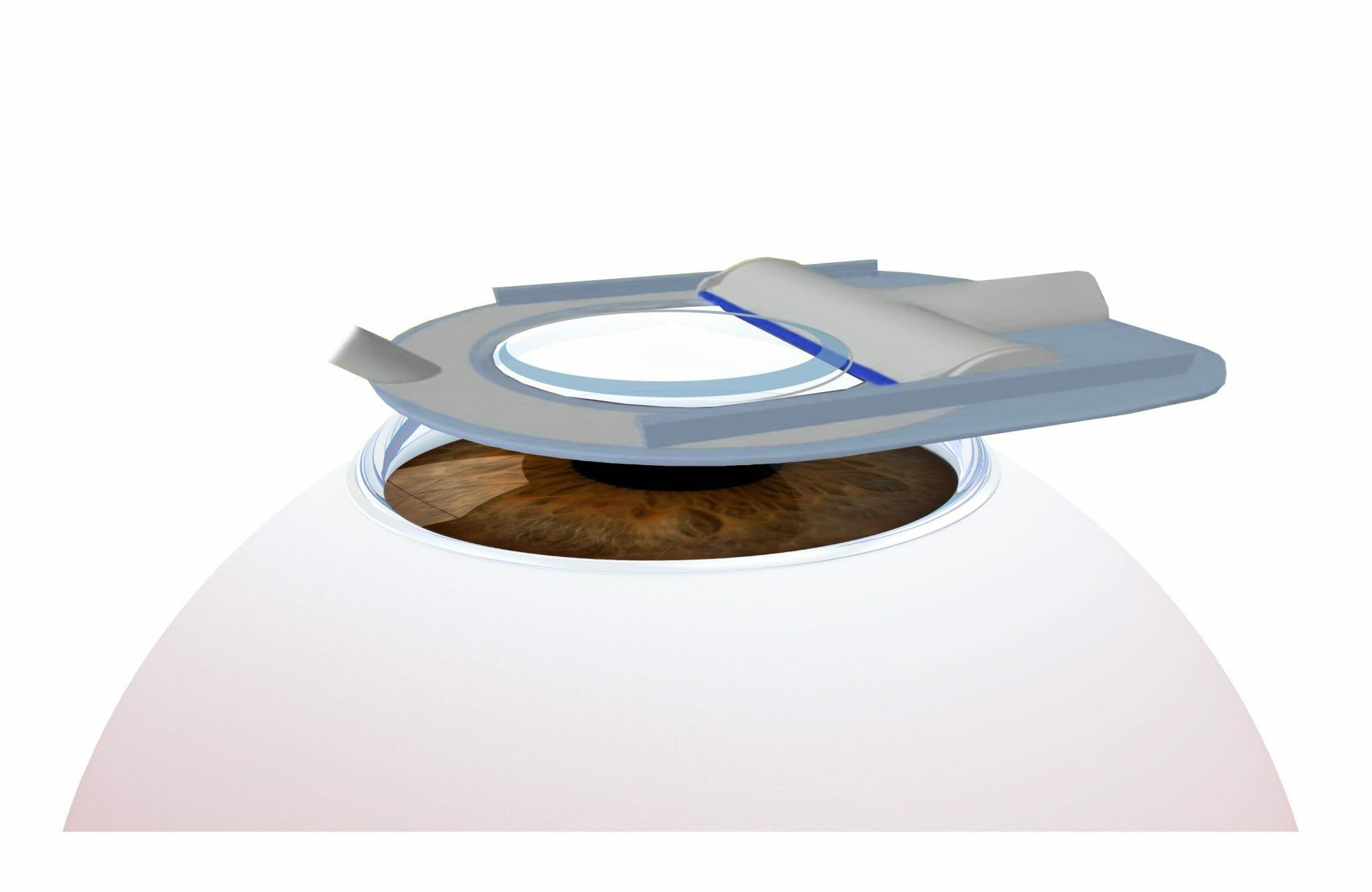 Epi Lasik Lasek Prk Advanced Surface Ablation Lsc Eye Clinic