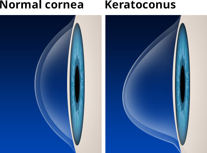 keratoconus-with-labels-660×488