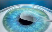 Removal of the Lenticule