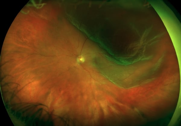 retinal detachment zoomed