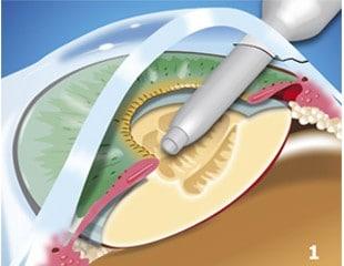 Cataracts-Treated-img1