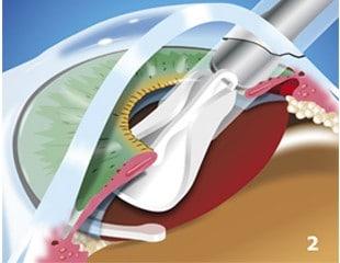 Cataracts-Treated-img2