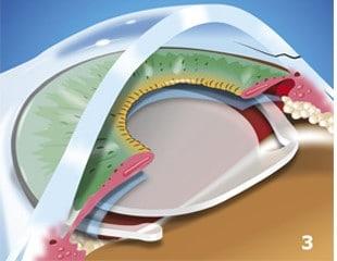 Cataracts-Treated-img3