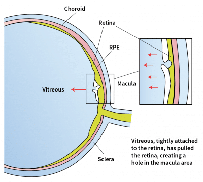 Macular Hole Illustration