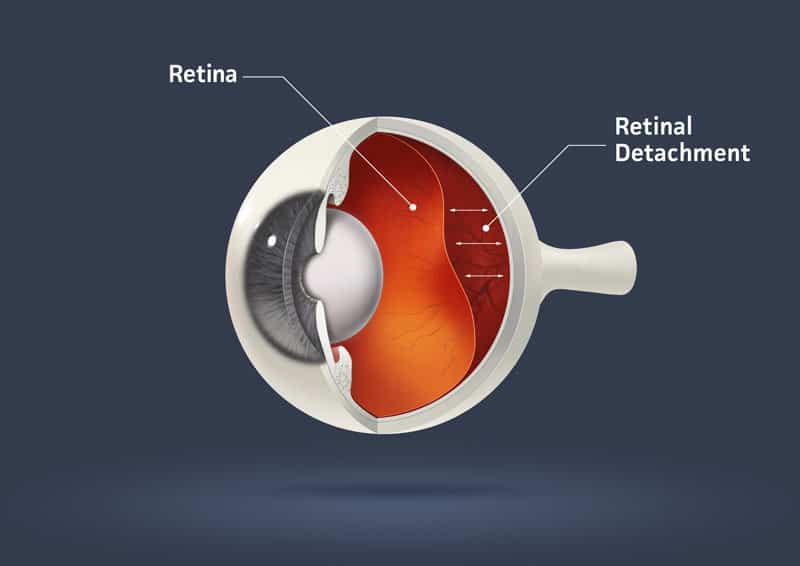 Retina Detachment